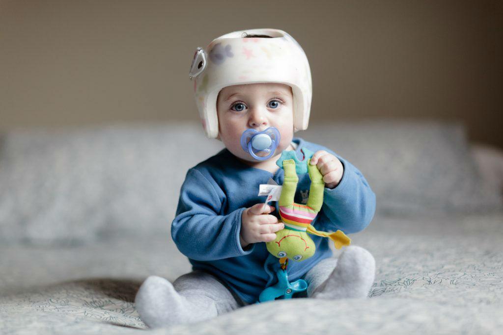Tratament pentru bebelusii care sufera de plagiocefalie