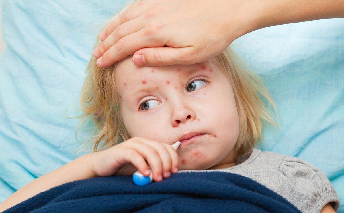 Rujeola Simptome Si Tratamente Itsy Bitsy