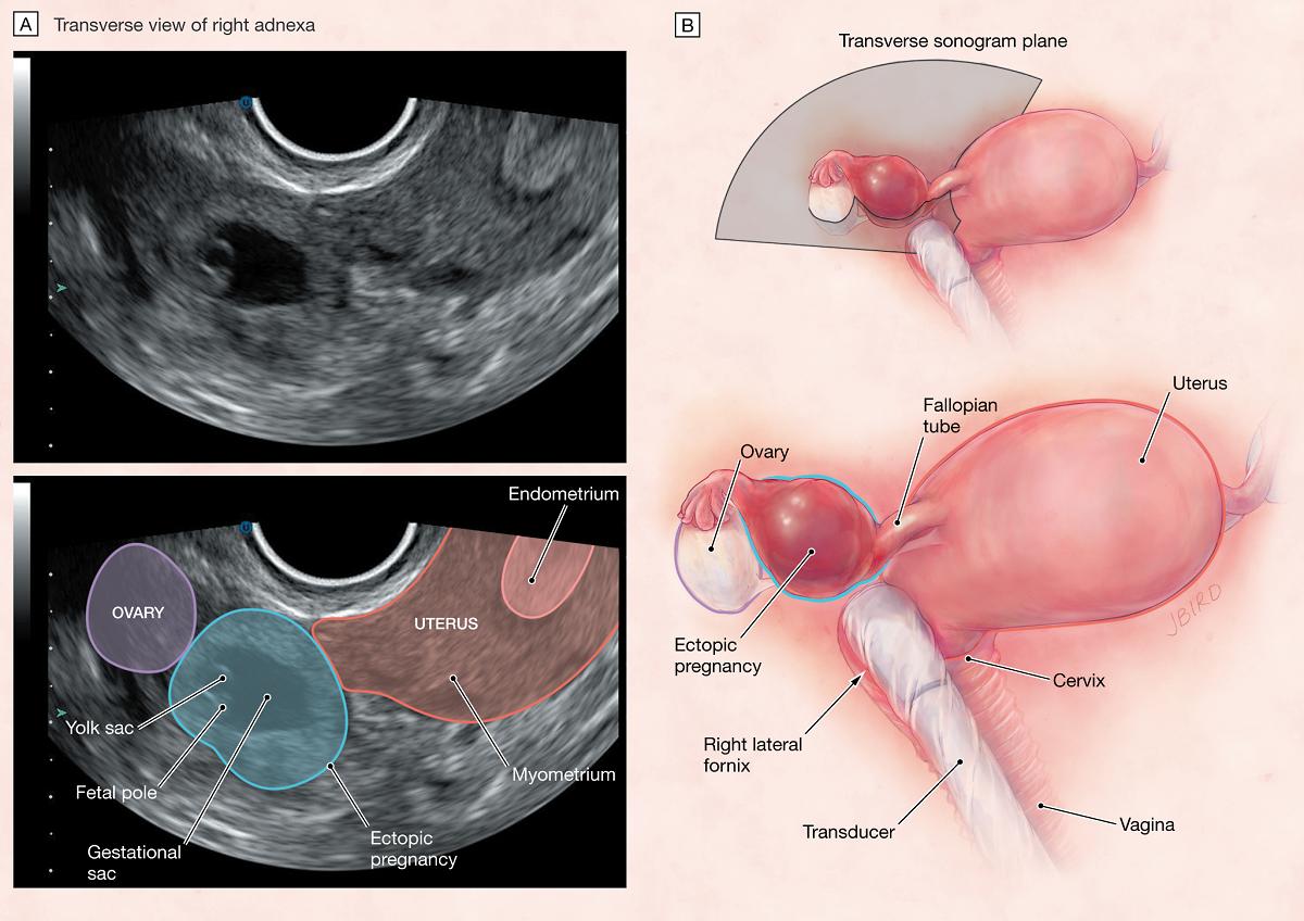 Sarcina extrauterina: Cauze, simptome, definitii