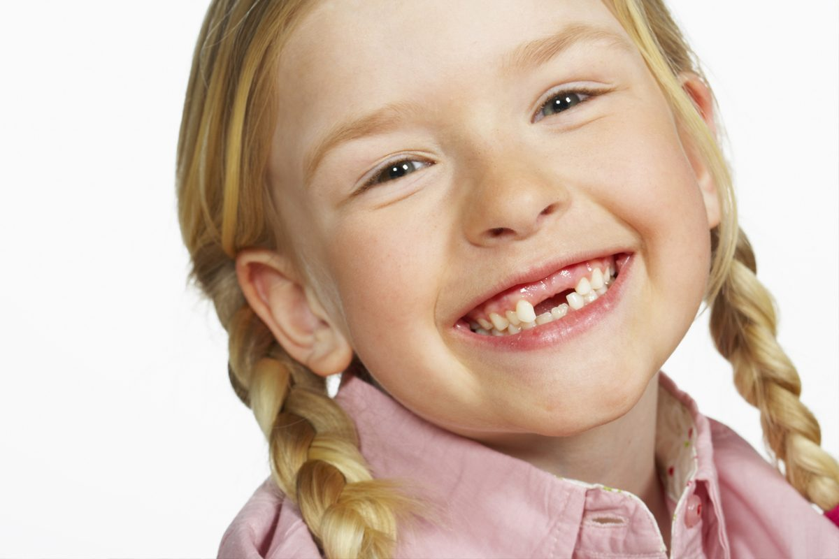 Traumatismul dento-alveolar si alte accidente dentare la copii