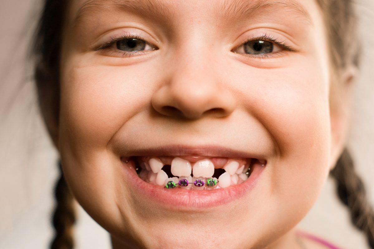 Cauza pentru dinti lipsa la copii