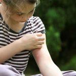 Cum ne aparam de intepaturile de insecte?