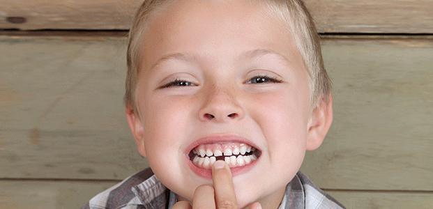 Ce facem cand dintii copiilor nu apar la timp?