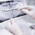 rata-succes-implant-dentar